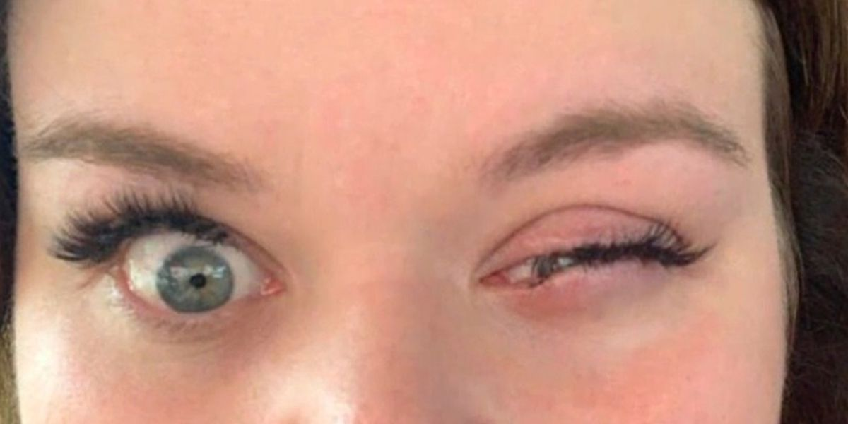 Woman suffers chemical burns to her eye after eyelash extensions gone wrong