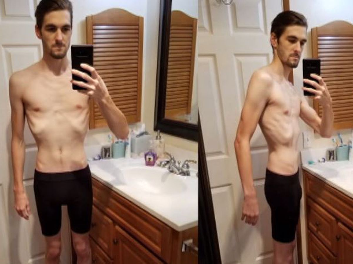 Veteran denied surgery for rare condition that causes constant pain, severe weight loss