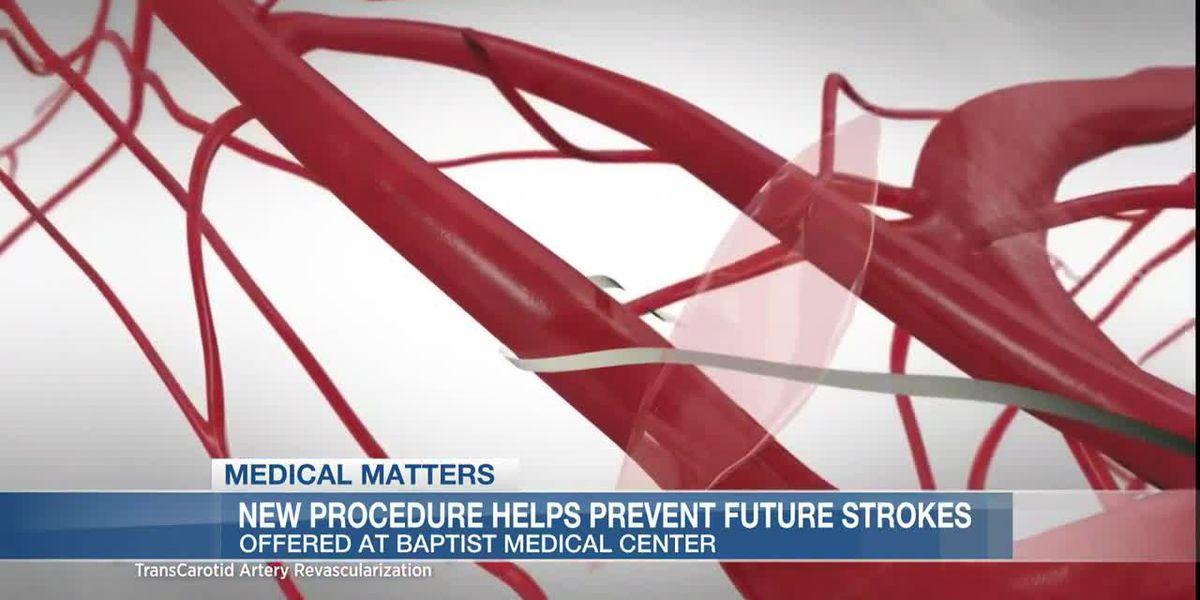 Baptist Medical Center first in the metro area to perform a new procedure that prevents future strokes