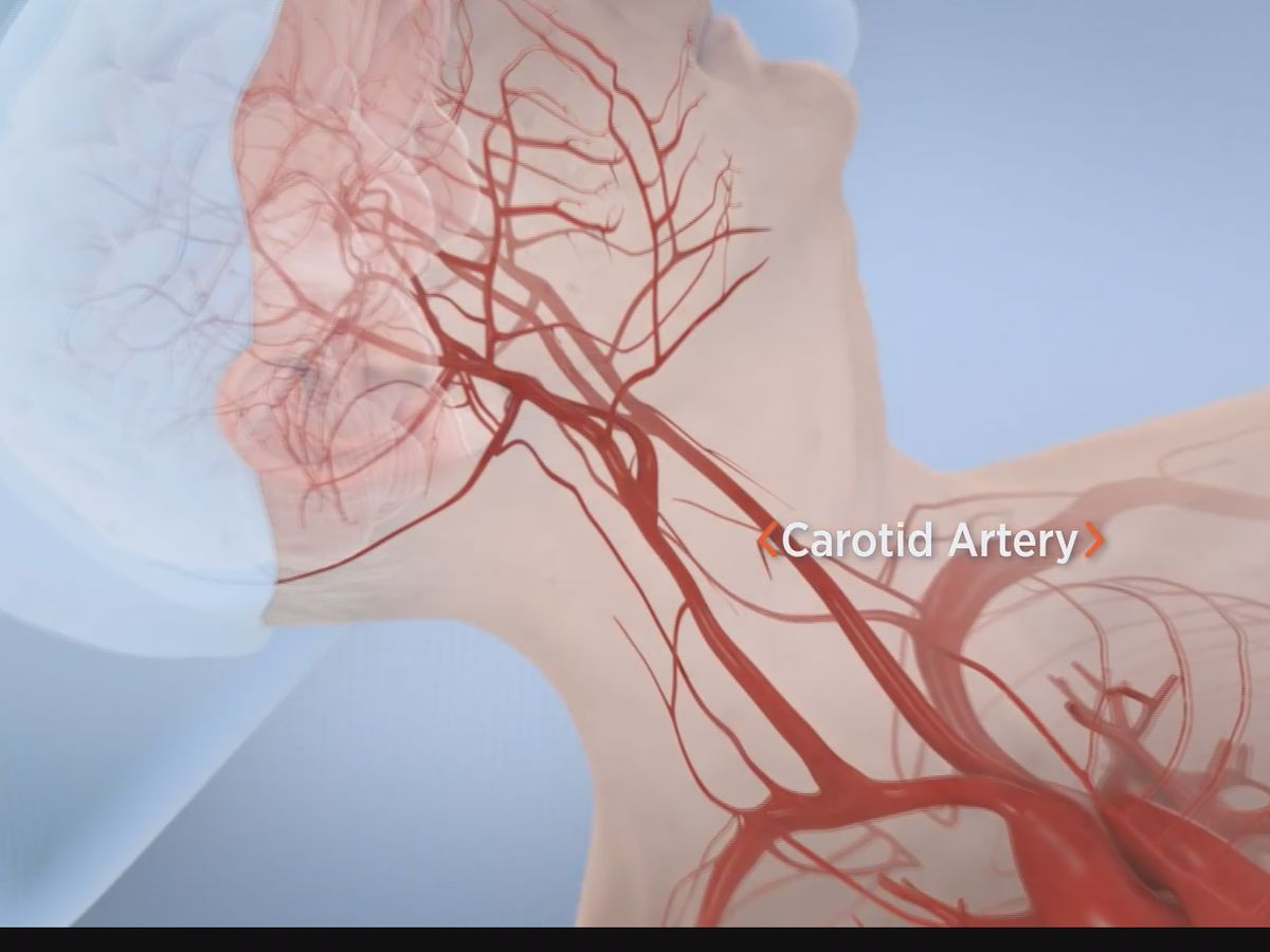 Baptist Medical Center first in the metro to perform new procedure that prevents strokes
