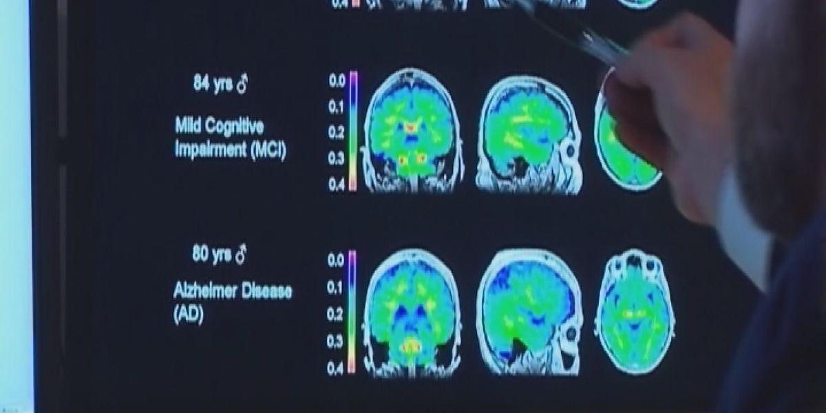World Health Organization shares new guidelines for dementia prevention